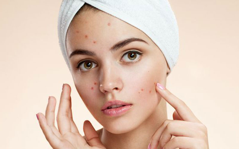 Acerola Cherry Clears Up Acne and Other Skin Problems