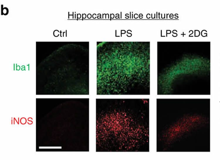 This image shows hippocampal slices.